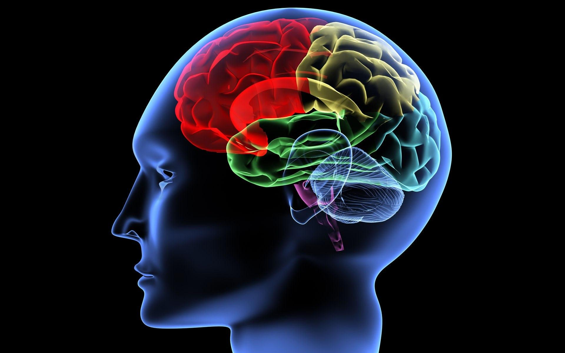 discussing the definition characteristics and causes of mental retardation traumatic brain injury au As mentioned, ids have many causes these include genetics, brain injury, and certain medical conditions people with an id are typically provided with additional supports these supports help people to enjoy a satisfying life despite their disability people with limited mental abilities struggle to develop the skills needed for independent living.