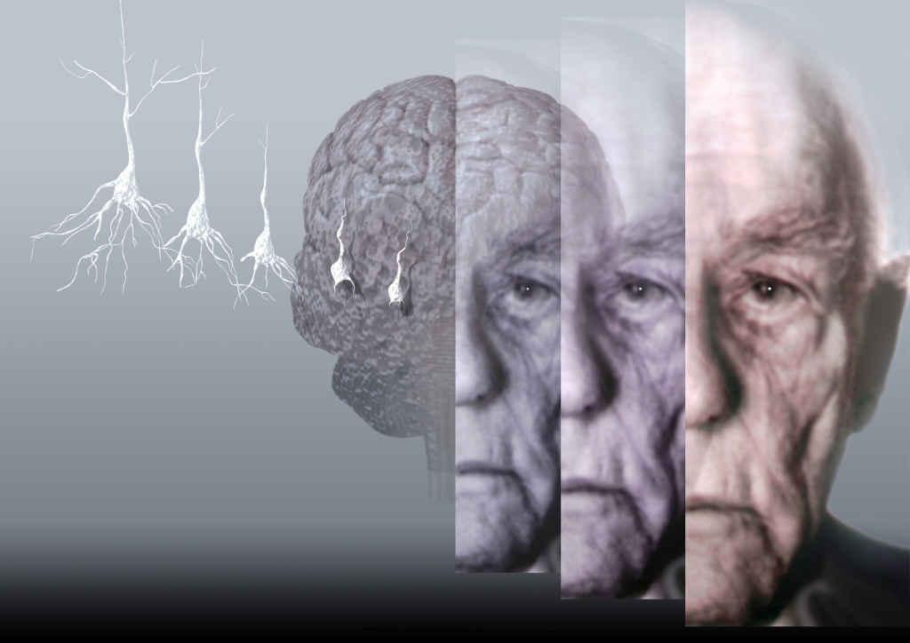 possible psychological effects of alzheimers disease