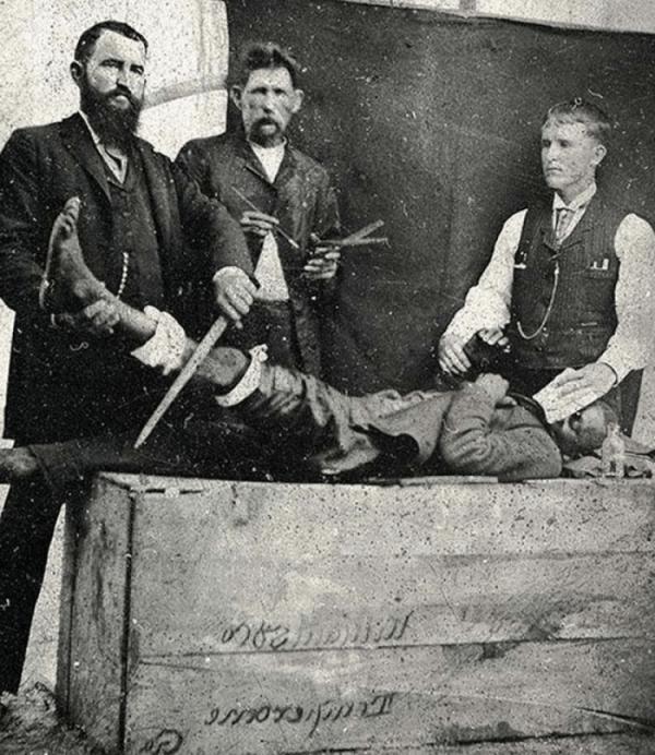 Медицинские снимки прошлого, от которых становится не по себе (ФОТО)
