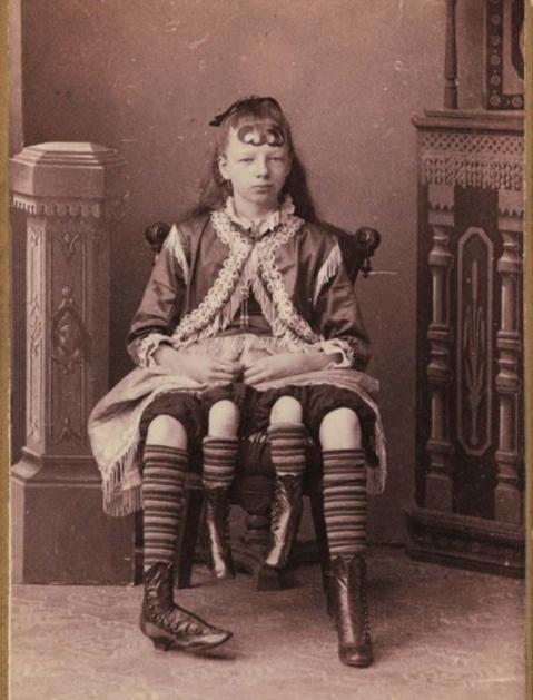 Не для слабонервных! Подборка жутких цирковых фотографий из прошлого (ФОТО)