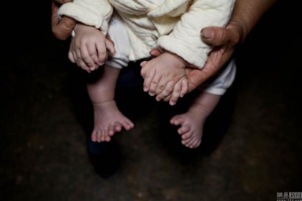 Уникальный случай. В Китае родился мальчик с 31 пальцем (ФОТО)