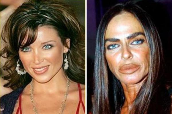 Когда не повезло с хирургом. Красота и ее жертвы (ФОТО)