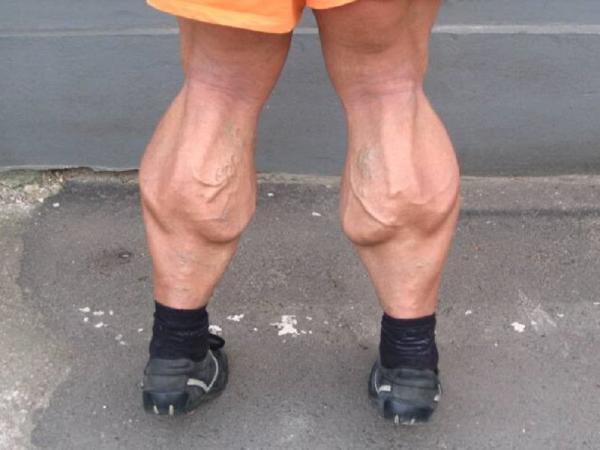 Как выглядят люди, которые никогда не пропускали день ног (ФОТО)