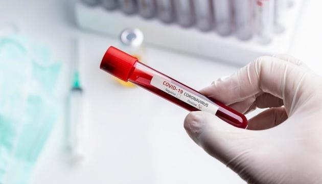 В Испании зафиксировали более 4 тысяч новых случаев COVID-19