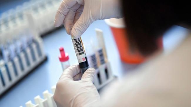 Число больных COVID-19 в мире выросло на 88 тысяч