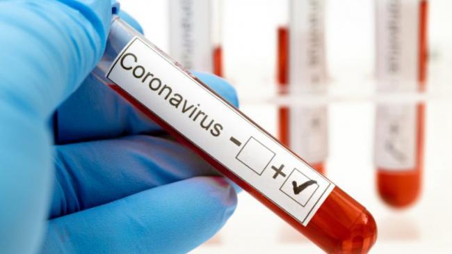 Число больных COVID-19 в Украине превысило две тысячи за сутки