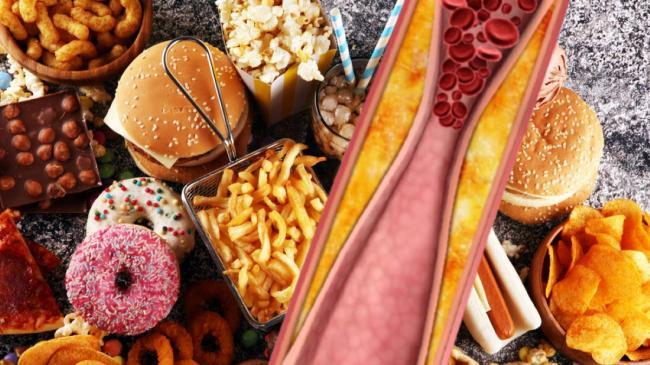 Высокий холестерин: названы пищевые привычки, от которых лучше отказаться