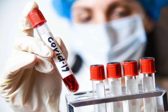 Украина может стать одним из лидеров Европы по уровню COVID-заболеваемости